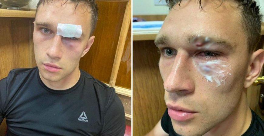 Роман Широков жестко избил судью на любительском турнире звезд